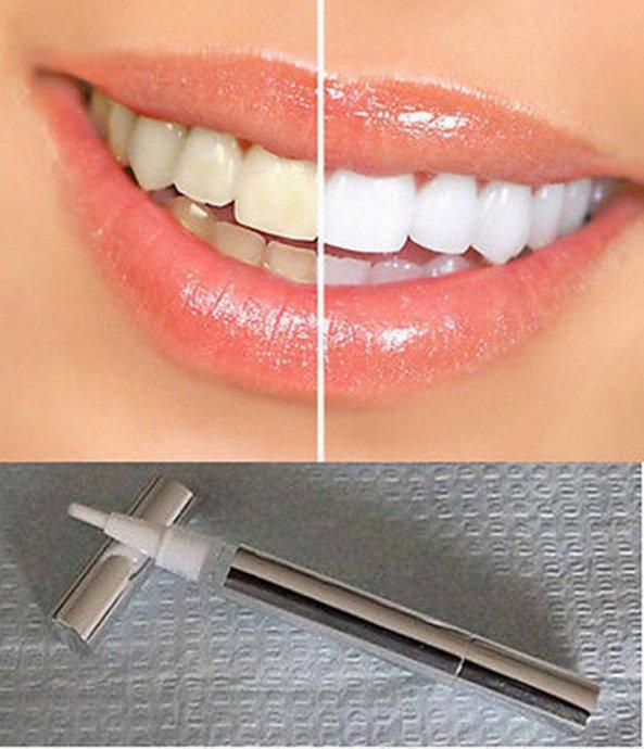 Kako ispraviti zube kod kuce