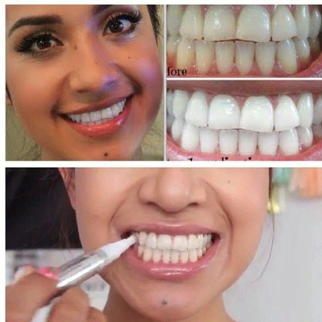 Избељивање зуба на кућном форуму